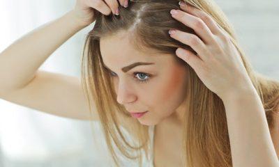 Kadın Tipi Saç Dökülmesi