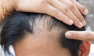 saç ekimi yöntemi