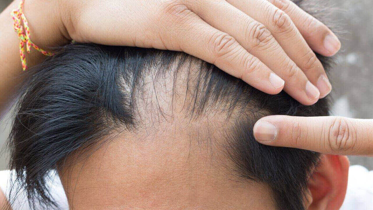 Saç Dökülmesinin Nedenleri Ve Tedavi Yöntemleri
