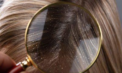 Saç Kepeklenmesi ve Kepek Tedavisi