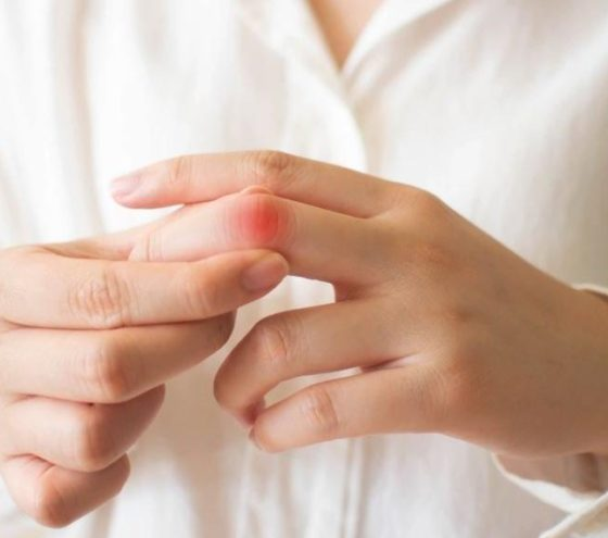 Lupus belirtileri nelerdir
