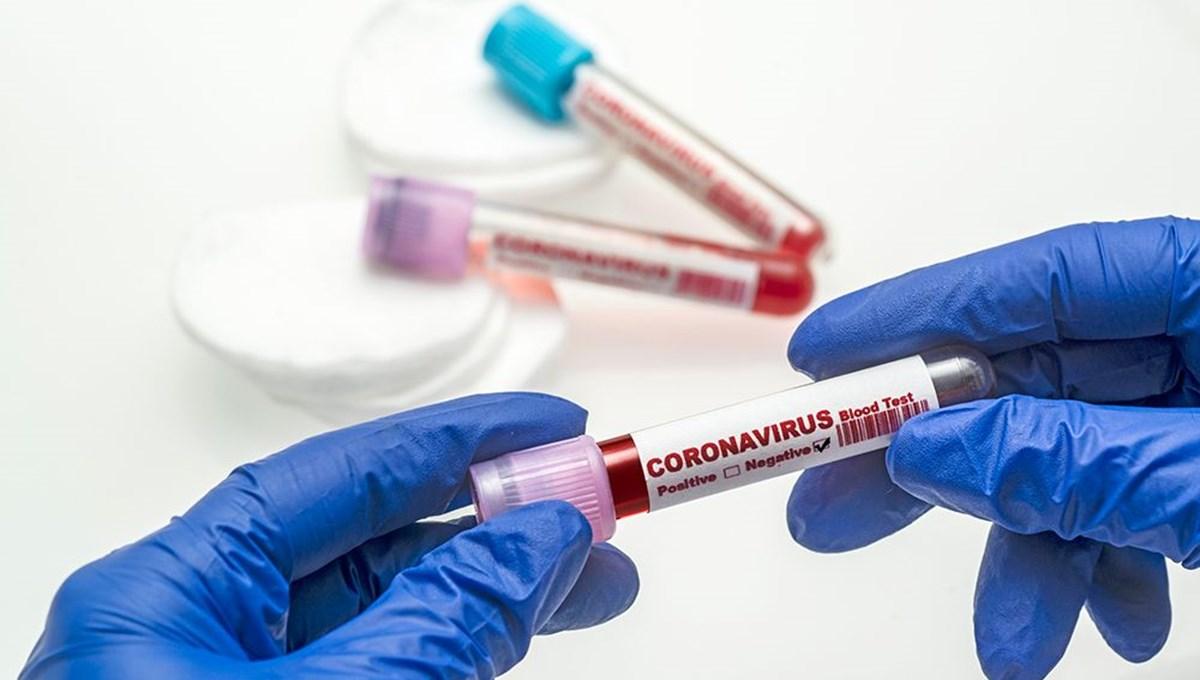 17 Ekim 2021 corona virüs tablosu: 186 can kaybı, 24 bin 114